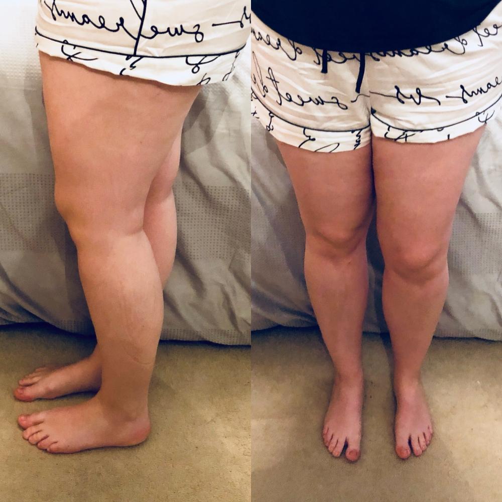 Before Knee Surgery (Pre-Op)