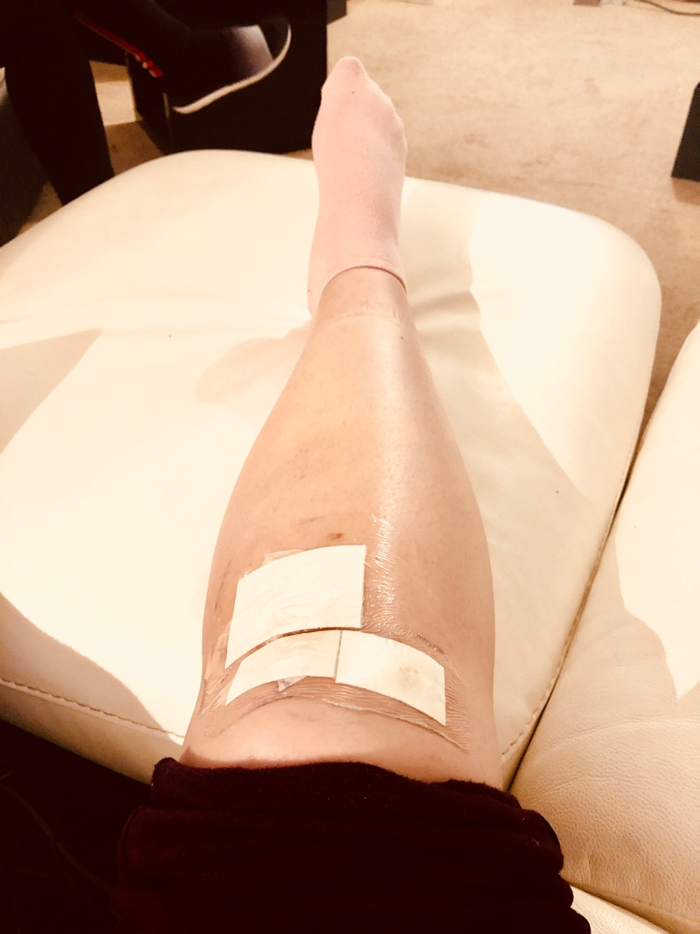 Week 1 - Leg recovery